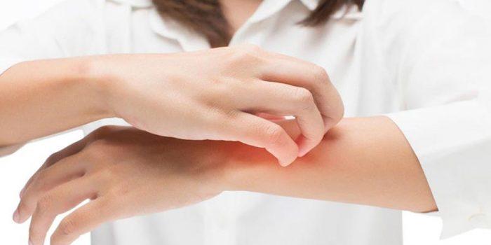 o que levar para reação alérgica inchaço