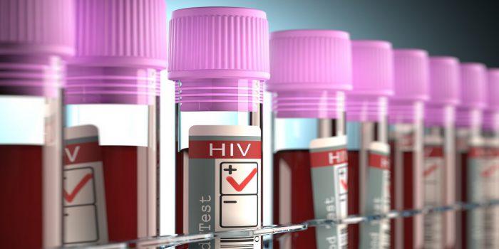 Saiba tudo sobre AIDS e HIV: dos sintomas ao tratamento