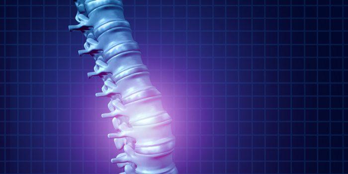 Saiba tudo sobre osteoporose: sintomas, diagnóstico, tratamento e prevenção