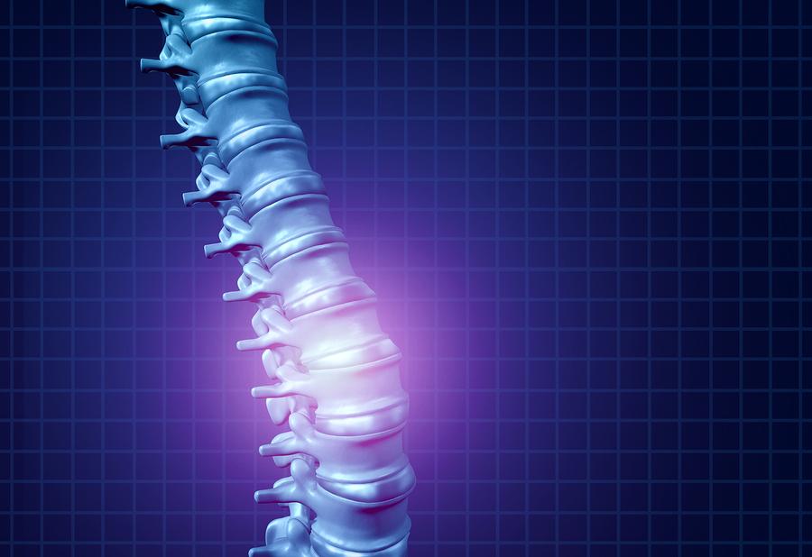 Ilustração de osso danificado | Saiba tudo sobre osteoporose