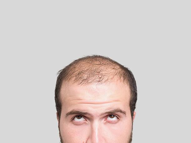 Homem com cabelos mais ralos parte de cima da cabeça | A queda de cabelo é o mesmo que calvície?